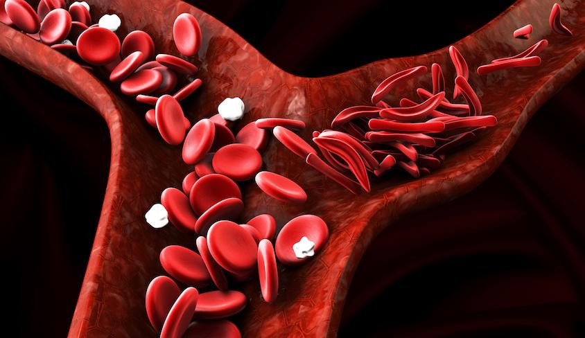 La estructura y función de la diabetes de hemoglobinas vegetales.