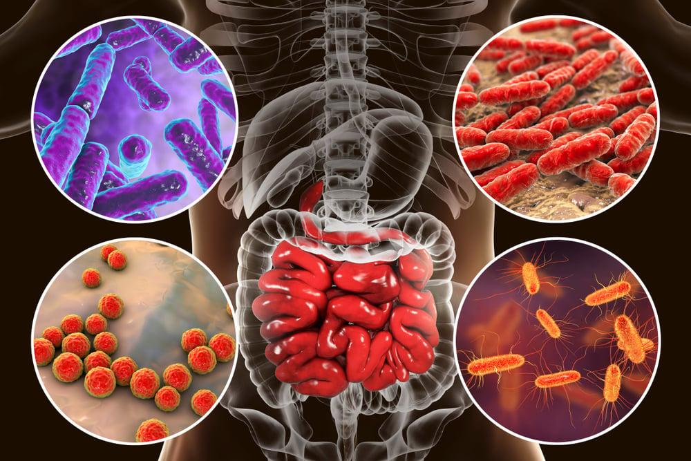 paksusuolen tulehdus oireet