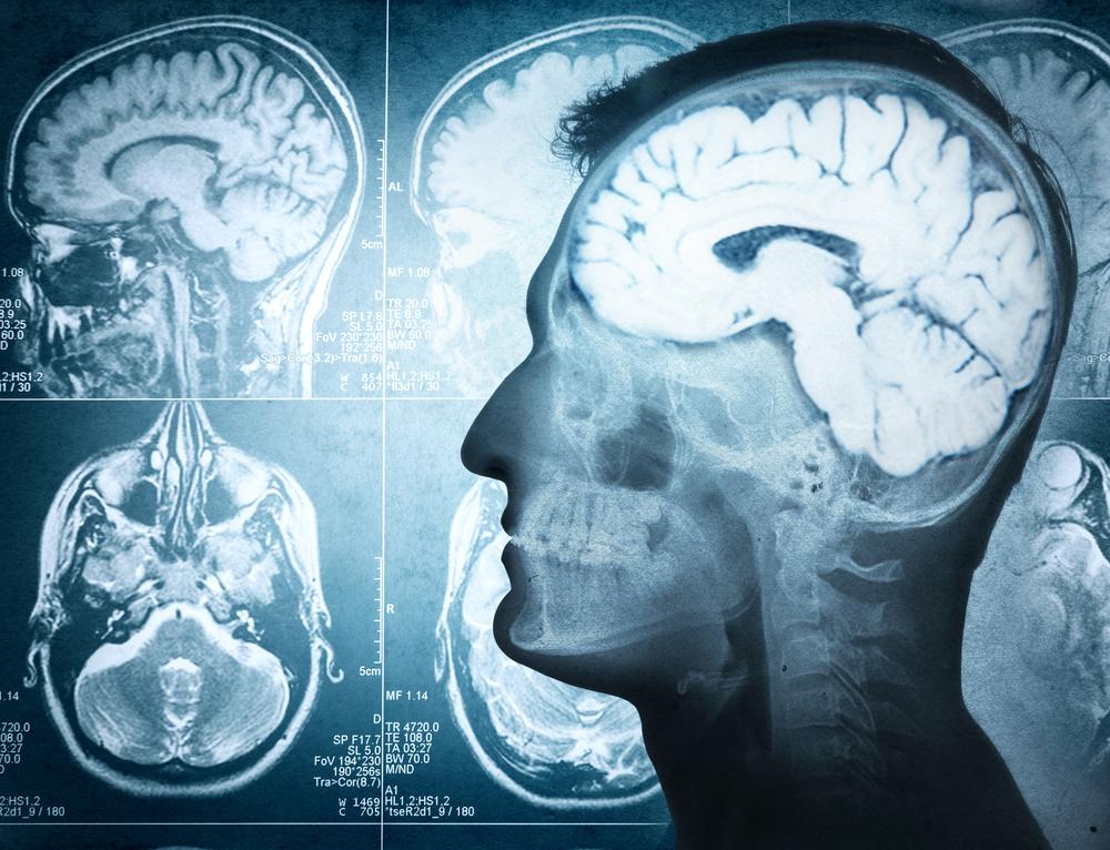 disturbi-cervello-cbd