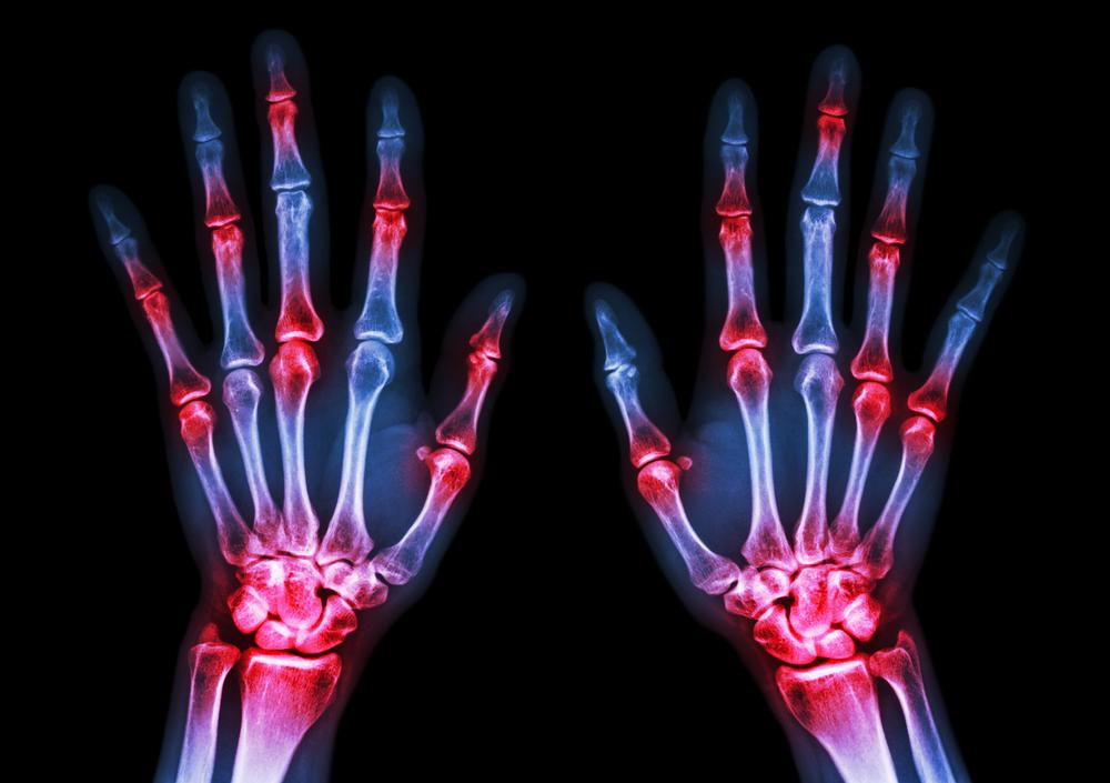 dailyCBD-Patologia-artrite-4