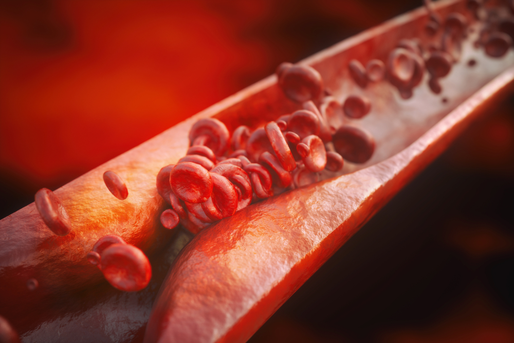 dailyCBD-patologia-aterosclerosi-2