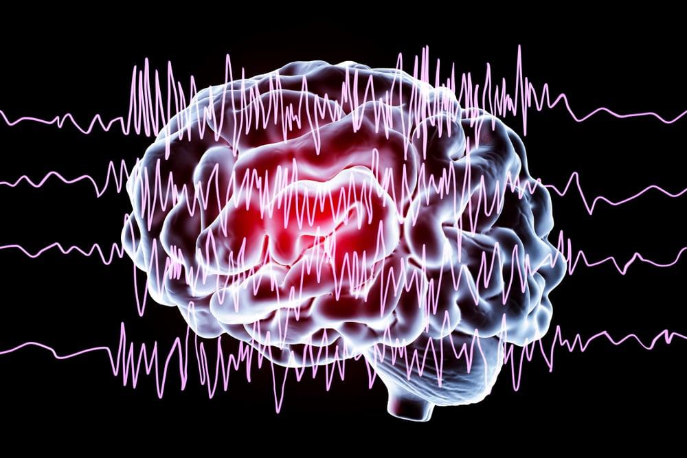 dailyCBD-Patologia-epilessia-2