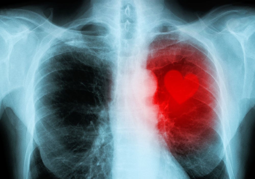dailyCBD-Patologia-malattie-cardiache-2