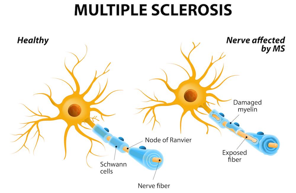 dailyCBD-Patologia-sclerosi-multipla-3