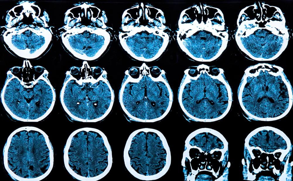 dailyCBD-Patologia-Neurodegenerazione-2