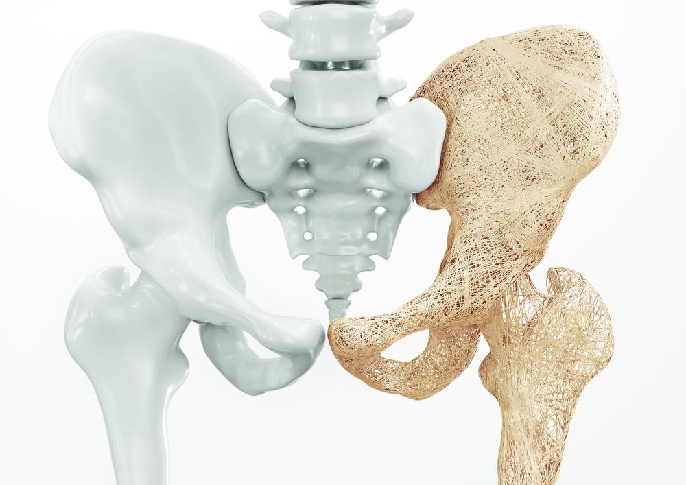 dailyCBD-Patologia-Osteoporosi-1