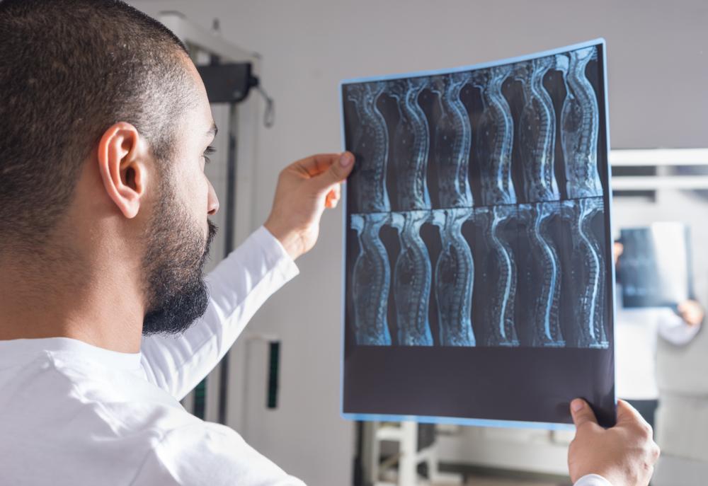 dailyCBD-Patologia-Midollo-spinale-3