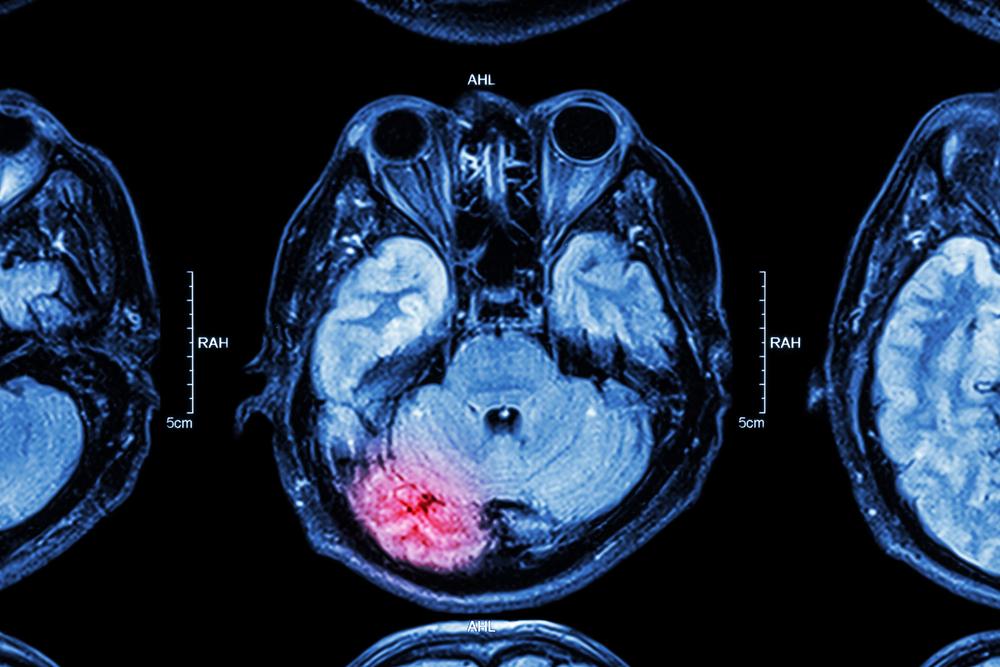 dailyCBD-Patologia-Trauma-cranico-1