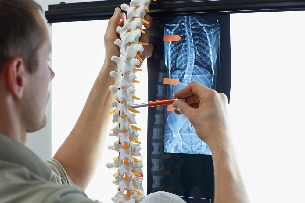 lesione-midollo-spinale-cbd