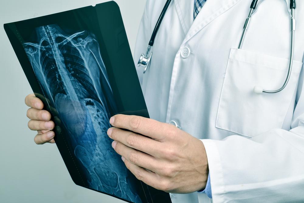 raggix-lesione-midollo-spinale