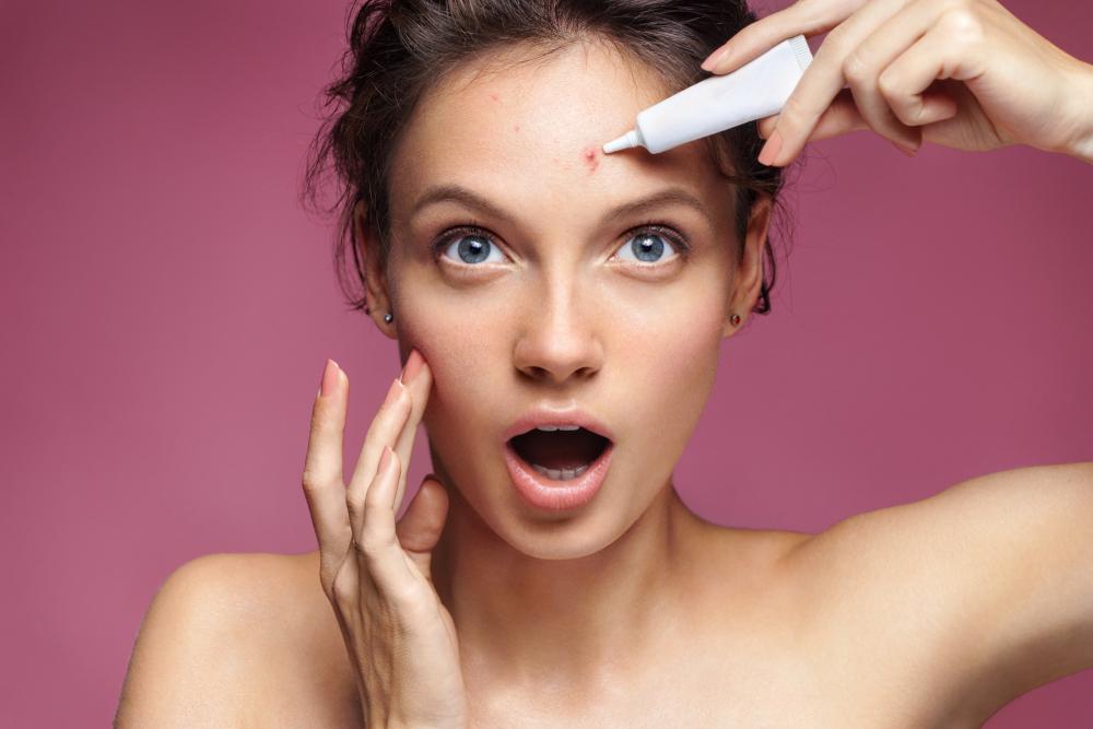 dailyCBD-Patologia-Acne-pubertà